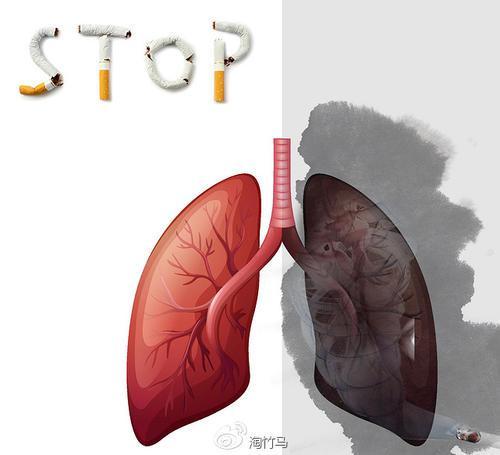 戒烟常见的副作用有哪些?